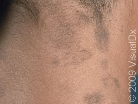 Hyperpigmentation on the neck